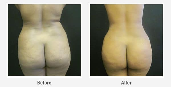 Lipo and Awake Liposuction Seattle Before and After